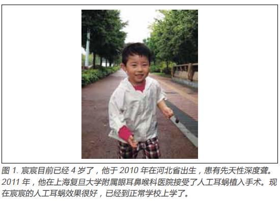 专题分享1人工耳蜗中国深度耳聋患者的新未来