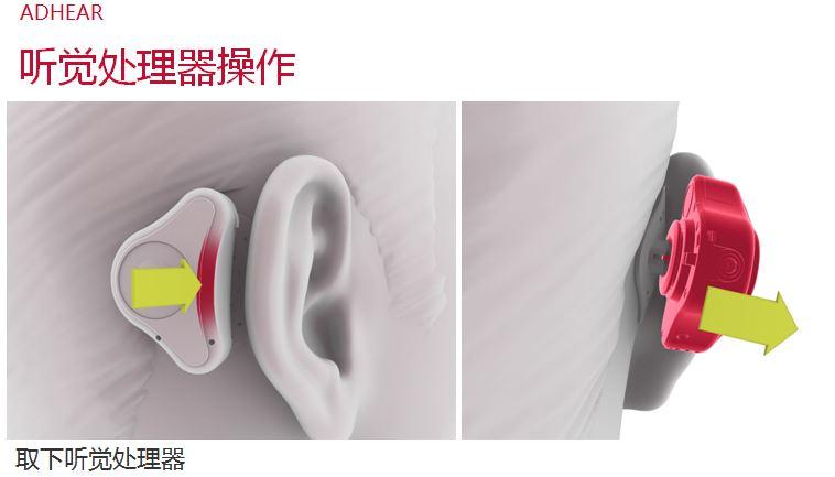 爱笛骨导助听器常见问答、使用效果与操作经验!